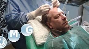 Hajbeültetés, hajátültetés Békés Megyében