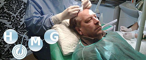 Hajátültetés – Hajbeültetés – Hajtranszplantáció Magyarországon