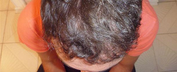 Hajátültetés – Hajbeültetés – Hajtranszplantáció Férfiak Esetében