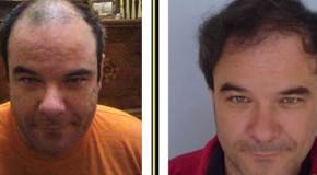 Hajátültetés – Hajbeültetés – Hajtranszplantáció Következményei és Szövődményei