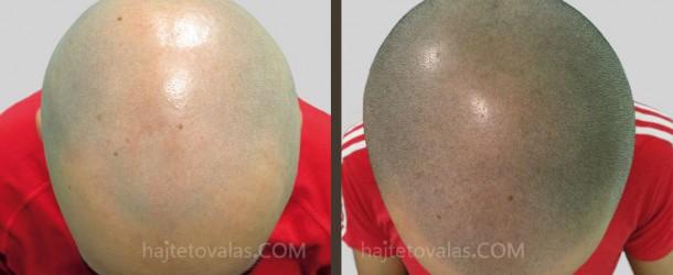 Haj pigmentálás