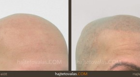 Hajpigmentáció