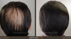 Fejbőr pigmentáció